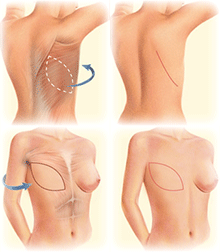 Latissimus Dorsi Flap outline, incision, and Complete Breast Mound